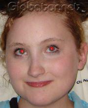 Как избавиться от красного глаза