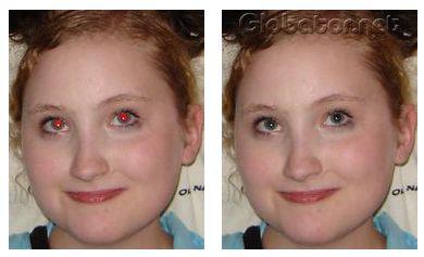 """Как убрать """"красные глаза"""""""